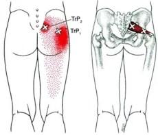 muscle-piriformis