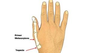 artrosis-pulgar2